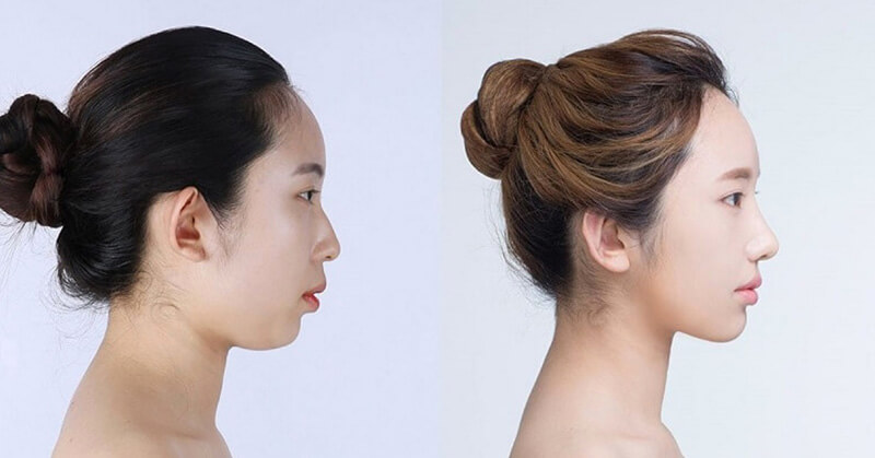 Hình ảnh trước và sau khi nâng mũi không phẫu thuật bằng chỉ Misko