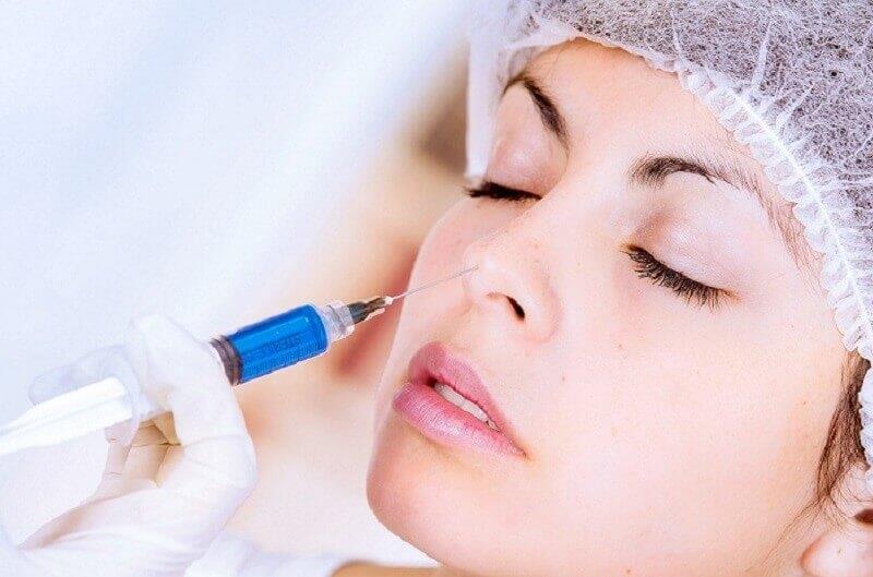 Phương pháp sử dụng filler để nâng mũi mà không cần phẫu thuật