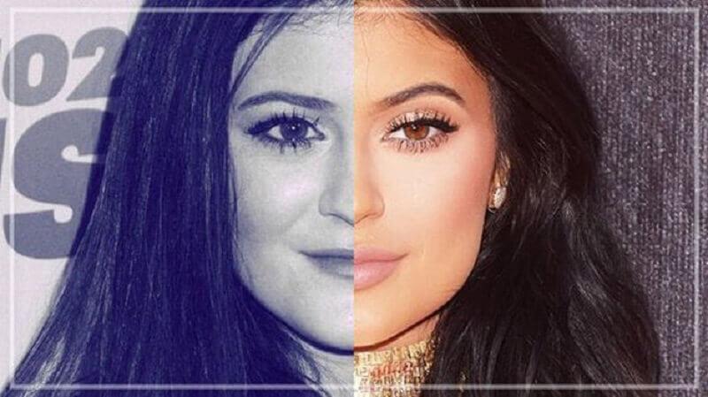 Nên chọn Botox hay filler để sỡ hữu gương mặt đẹp