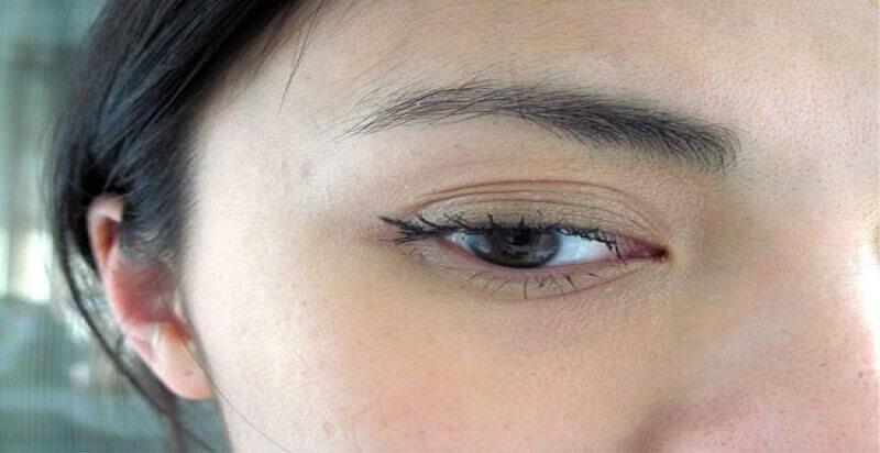 Do có nhiều nếp mắt xếp chồng lên nhau nên xuất hiện hiện tượng mắt 3 mí