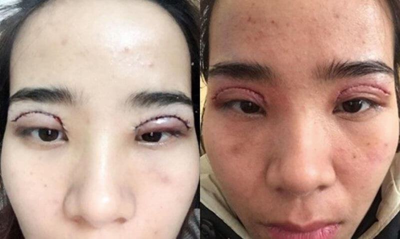 Những biến chứng bạn có thể gặp phải khi cắt mí mắt tại cơ sở không uy tín